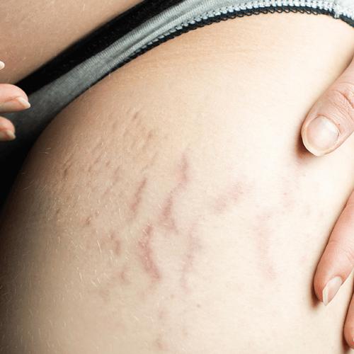 Skin Scarring & Stretch Marks