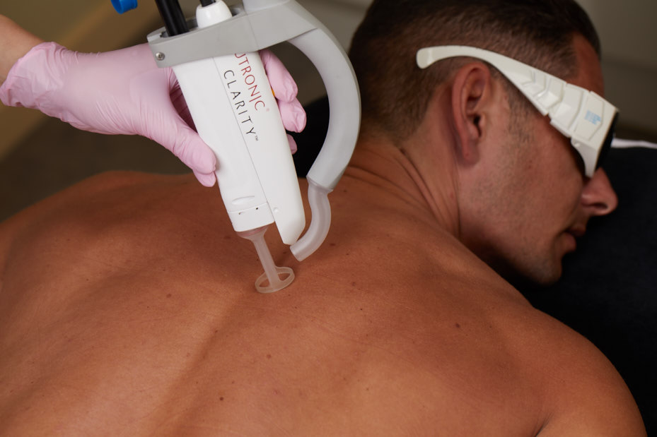 Mens Laser Hair Removal Full Back