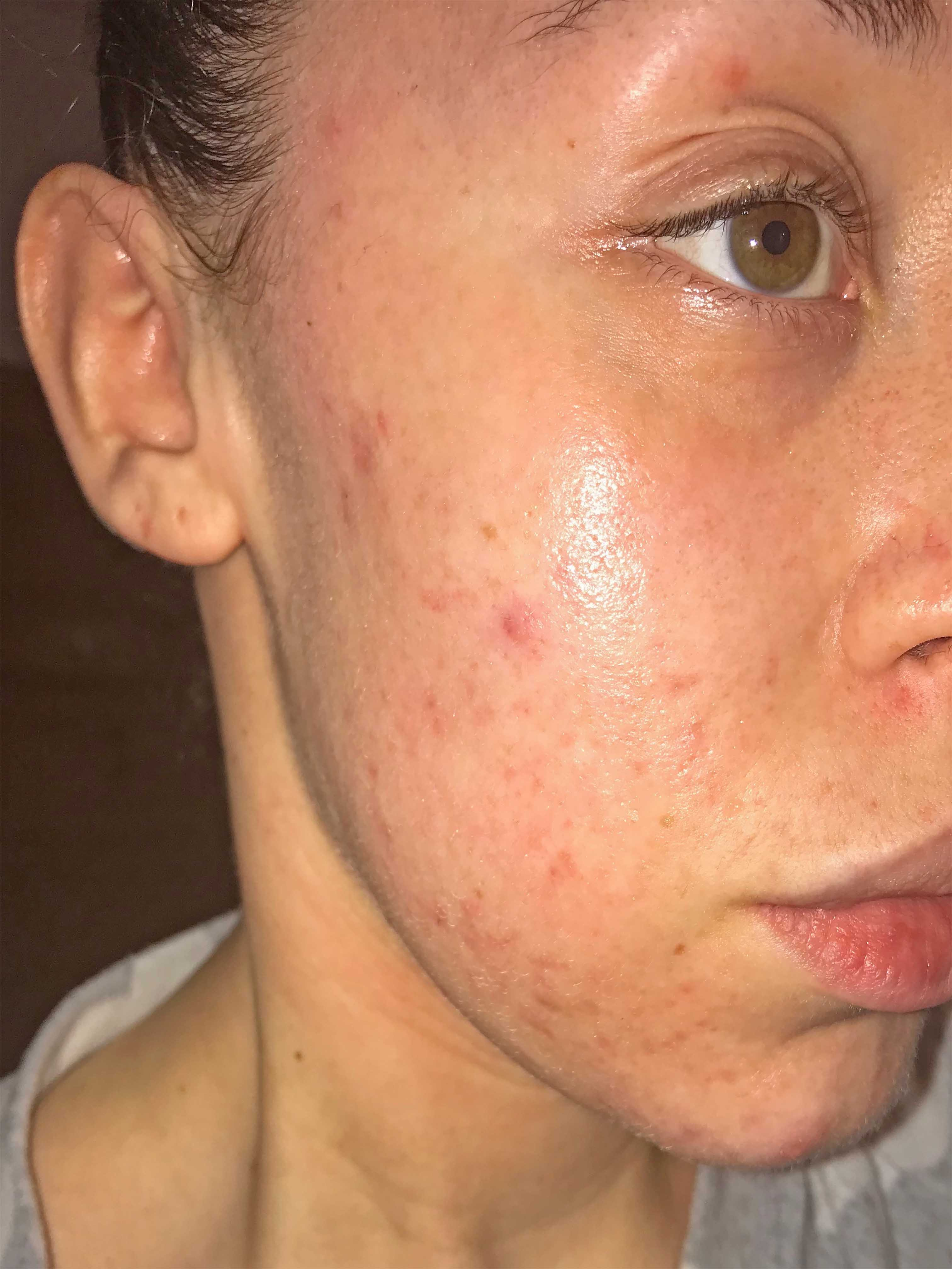 Skin after 3 acne treatments at Young LDN
