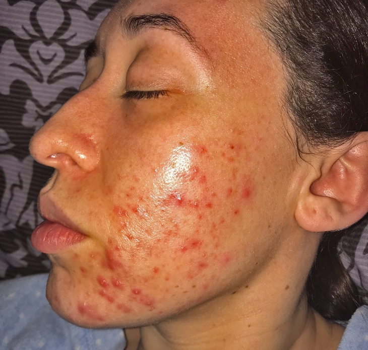 My skin before my acne treatments at Young LDN